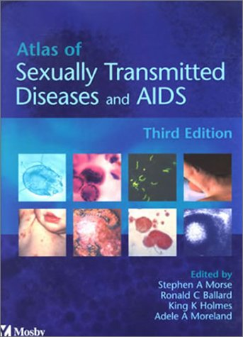 9780723432272: Atlas of Sexually Transmitted Diseases and AIDS, 3e