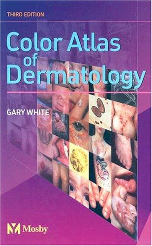 9780723432982: Color Atlas of Dermatology, 3e