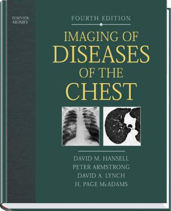 9780723433231: Imaging of Diseases of the Chest