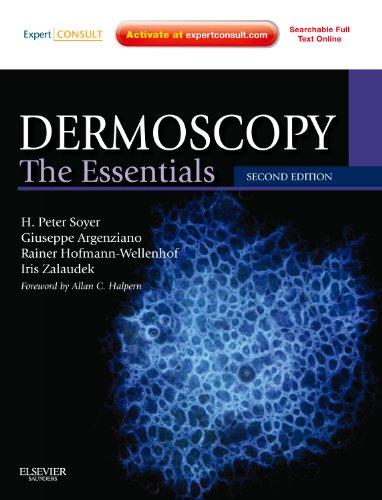 9780723435921: Dermoscopy: The Essentials: Expert Consult - Online and Print, 2e