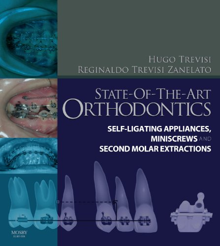9780723436539: State-of-the-Art Orthodontics: Self-Ligating Appliances, Miniscrews and Second Molars Extraction, 1e