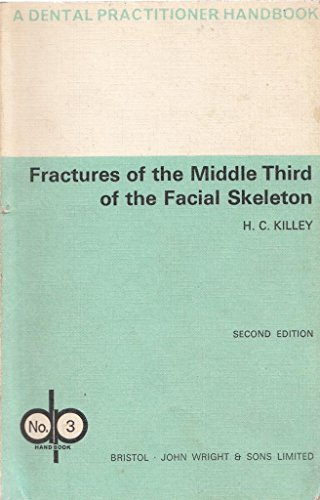 Fractures of the Middle Third of the: Killey, H, C.