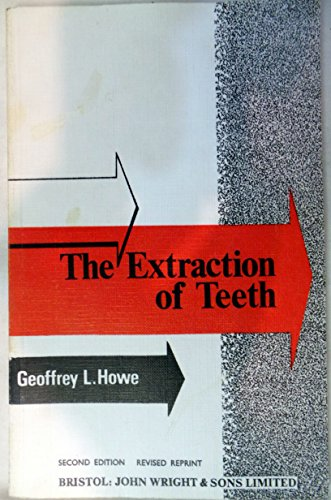 9780723603832: Extraction of Teeth