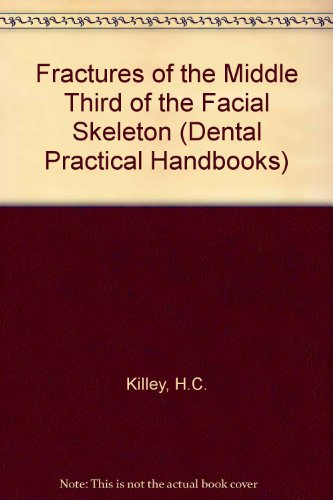 Fractures of the Middle Third of the: Killey, H.C.