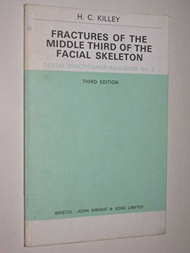 Fractures of the Middle Third of the: H.C. Killey