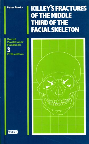 9780723607106: Killey's Fractures of the Middle Third of the Facial Skeleton (Dental Practitioner Handbook) (Spanish Edition)