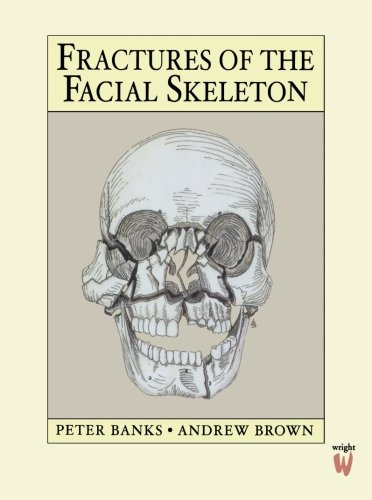 Fractures of the Facial Skeleton, 1e: Banks FRCS(Edin) FDSRCS(Eng)