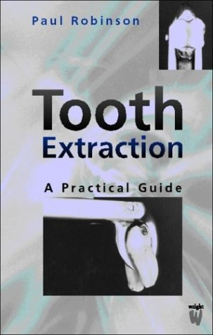 Tooth Extraction: A Practical Guide: Robinson, Paul D./
