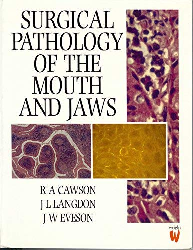 Surgical Pathology of the Mouth and Jaw,: Roderick A. Cawson