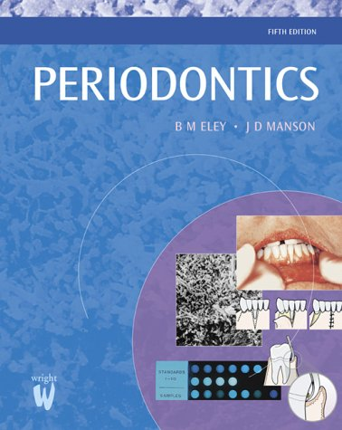 9780723610977: Outline of Periodontics