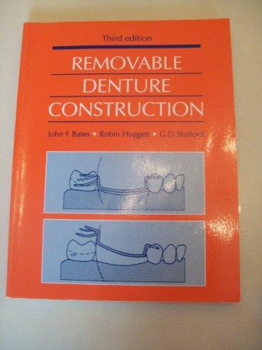 9780723616672: Removable Denture Construction