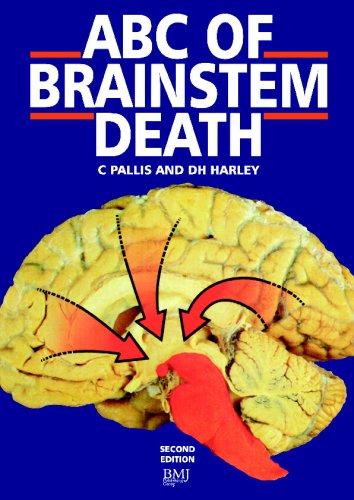 9780727902450: ABC of Brainstem Death (ABC Series)