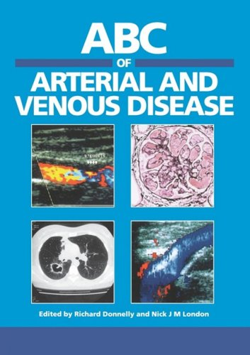 9780727915610: ABC of Arterial and Venous Disease (ABC Series)