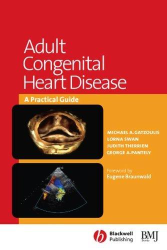 9780727916686: Adult Congenital Heart Disease: A Practical Guide