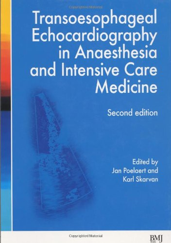 9780727917966: Transoesophageal Echocardiography in Anaesthesia and Intensive Care Medicine