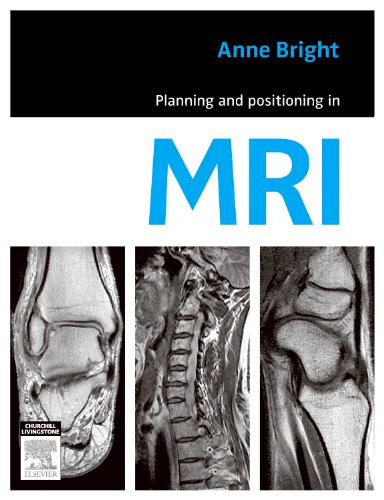 9780729539852: Planning and Positioning in MRI, 1e