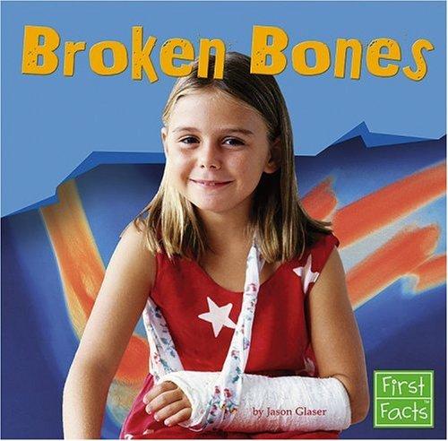 9780736863308: Broken Bones (First Facts)