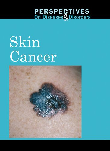 9780737747928: Skin Cancer (Perspectives on Diseases & Disorders)