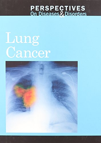 9780737750027: Lung Cancer (Perspectives on Diseases and Disorders)
