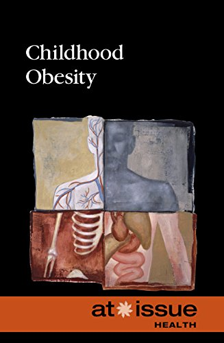 9780737774054: Childhood Obesity (At Issue)