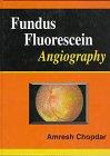 9780750618854: Fundus Fluorescein Angiography