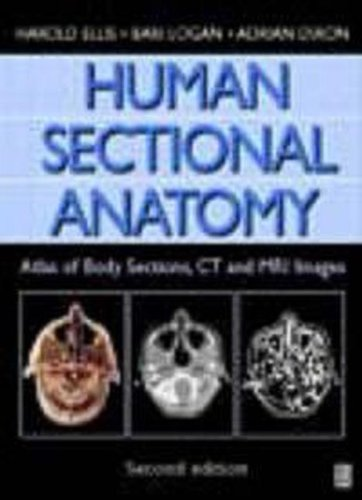 9780750633673: Human Sectional Anatomy, 2Ed: Atlas of Body Sections, CT and MRI Images