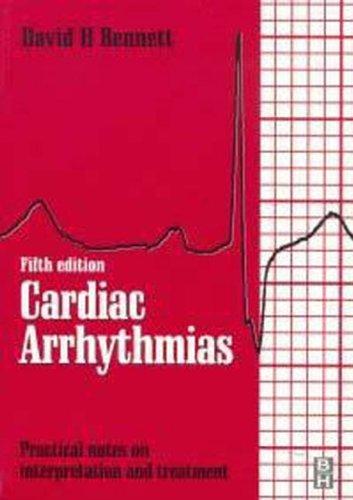 9780750633697: Cardiac Arrhythmias
