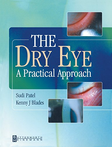 9780750649780: The Dry Eye: A Practical Approach, 1e