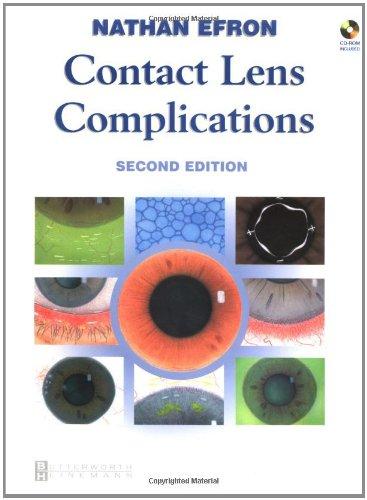 9780750655347: Contact Lens Complications