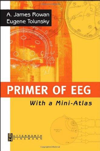 Primer of EEG: With A Mini-Atlas, 1e: A. James Rowan