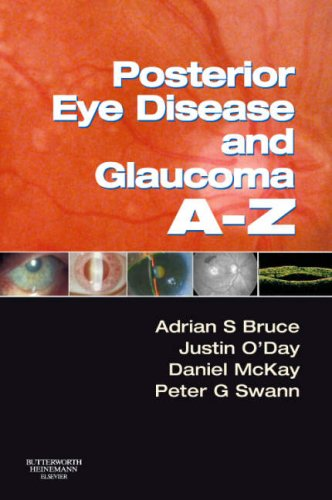 9780750688291: Posterior Eye Disease and Glaucoma A-Z, 1e