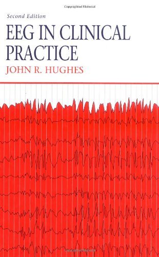 9780750695114: EEG in Clinical Practice
