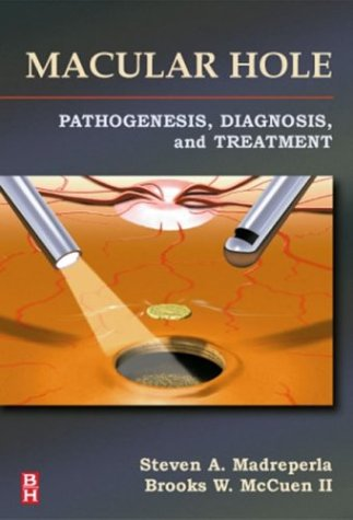 9780750699600: Macular Hole: Pathogenesis, Diagnosis, and Treatment