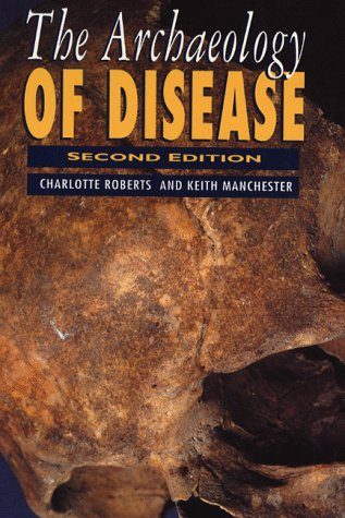 9780750914833: The Archaeology of Disease