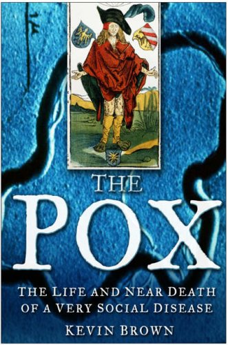 9780750940412: The Pox