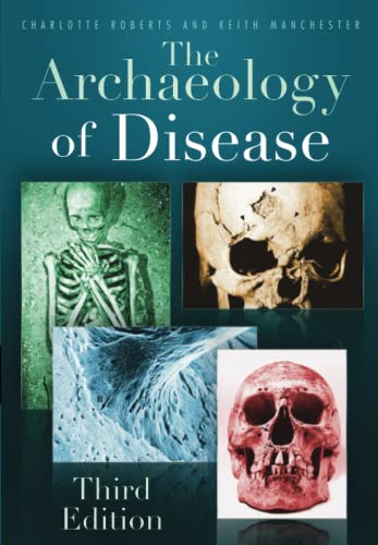 9780752457505: The Archaeology of Disease