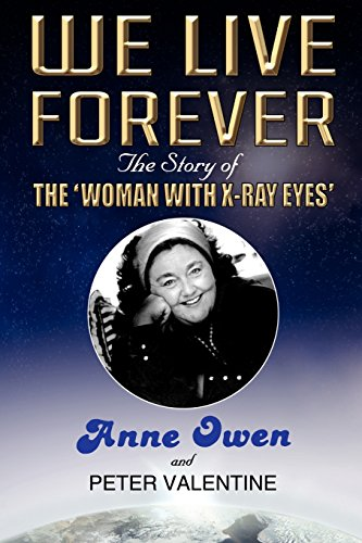 9780755213320: We Live Forever - The Story of The Woman with X-Ray Eyes
