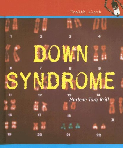 9780761422075: Down Syndrome (Health Aleart)