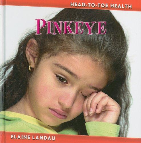9780761435044: Pinkeye (Head-to-Toe Health)