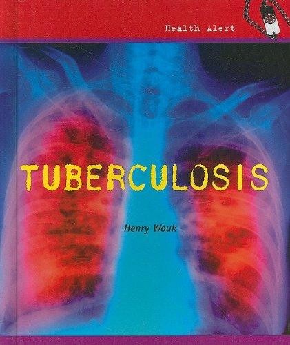 9780761439790: Tuberculosis (Health Alert)