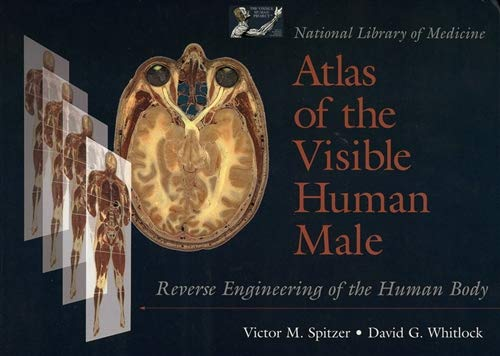 9780763702731: National Library of Medicine Atlas of the Visible Human Male: Reverse Engineering of the Human Body