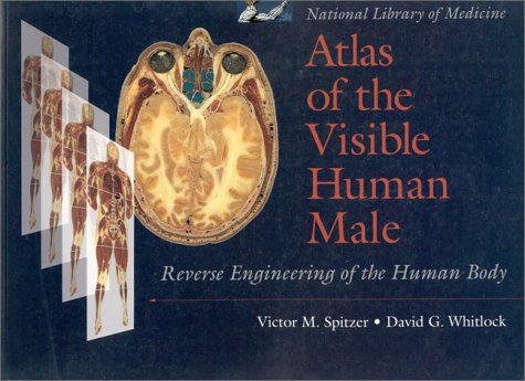9780763703479: Atlas of the Visible Human Male: Reverse Engineering of the Human Body