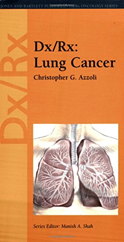9780763726416: Dx/Rx: Lung Cancer (Jones and Bartlett Publishers DX/RX Oncology)