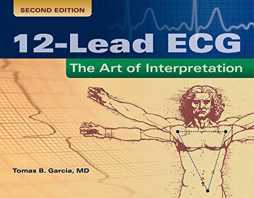 12-Lead ECG: The Art of Interpretation (Paperback): Tomas B. Garcia
