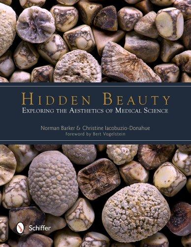 Hidden Beauty: Exploring the Aesthetics of Medical Science: Barker, Norman; Iacobuzio-Donahue, ...