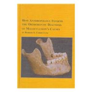 How Anthropology Informs the Orthodontic Diagnosis of: Robert S. Corruccini