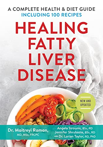 9780778804376: Healing Fatty Liver Disease: A Complete Health and Diet Guide, Including 100 Recipes
