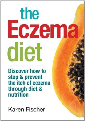 9780778804611: The Eczema Diet: Discover How to Stop and Prevent The Itch of Eczema Through Diet and Nutrition
