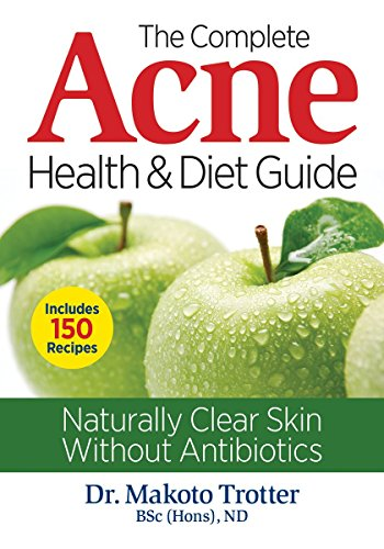 9780778805120: The Complete Acne Health and Diet Guide: Naturally Clear Skin Without Antibiotics