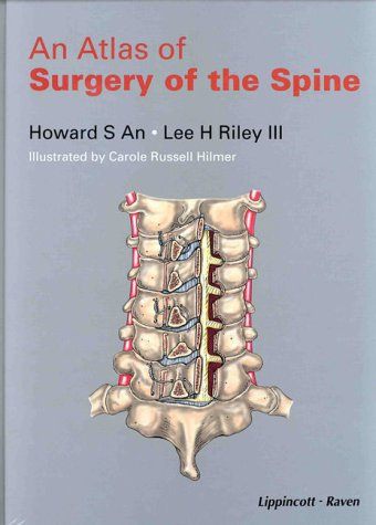 9780781712194: An Atlas of Surgery of the Spine